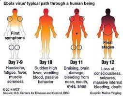 The typical symptoms of an Ebola victim.